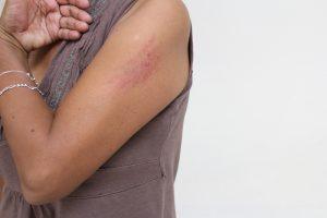 Respalda titular de Sevitra a empleada que fue agredida por pseudo transportista