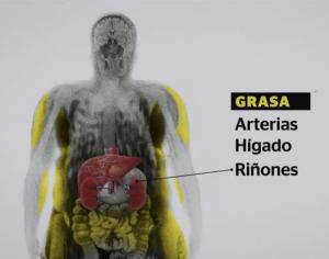 Epidemia de obesidad alcanza a los niños mexicanos: 32% tienen sobrepeso