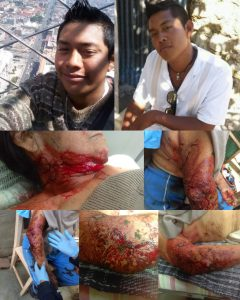 Atacan a navajazos a mujer de la tercera edad en Xoxo